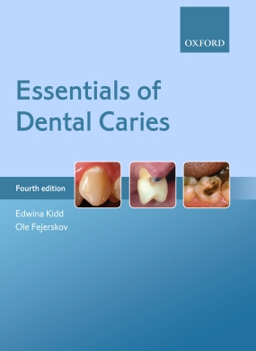 Essentials of Dental Caries.jpg