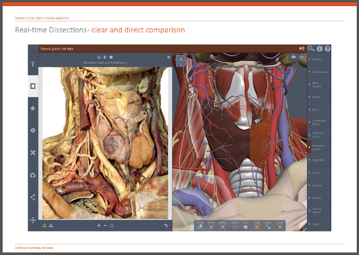 Primal Pictures 3d Real Time Human Anatomy Dissection Gallery Now