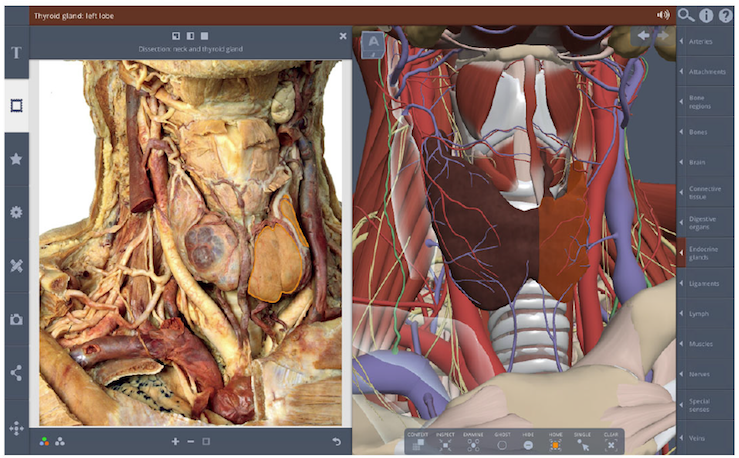 Primal Pictures 3d Real Time Human Anatomy Now Includes Correlative